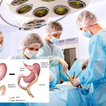 best bariatric surgeon Brisbane